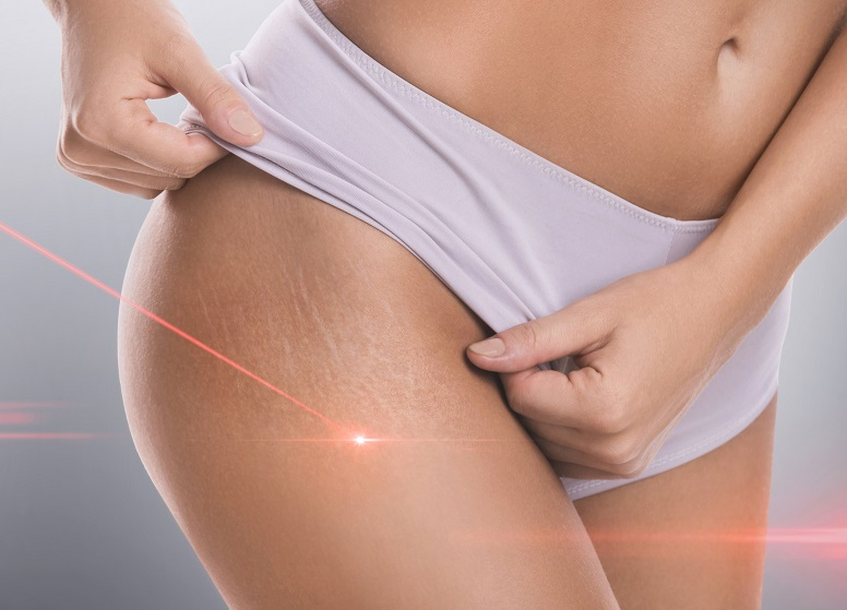 stretch marks - laser